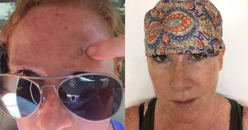 hudcancer ansikte bilder